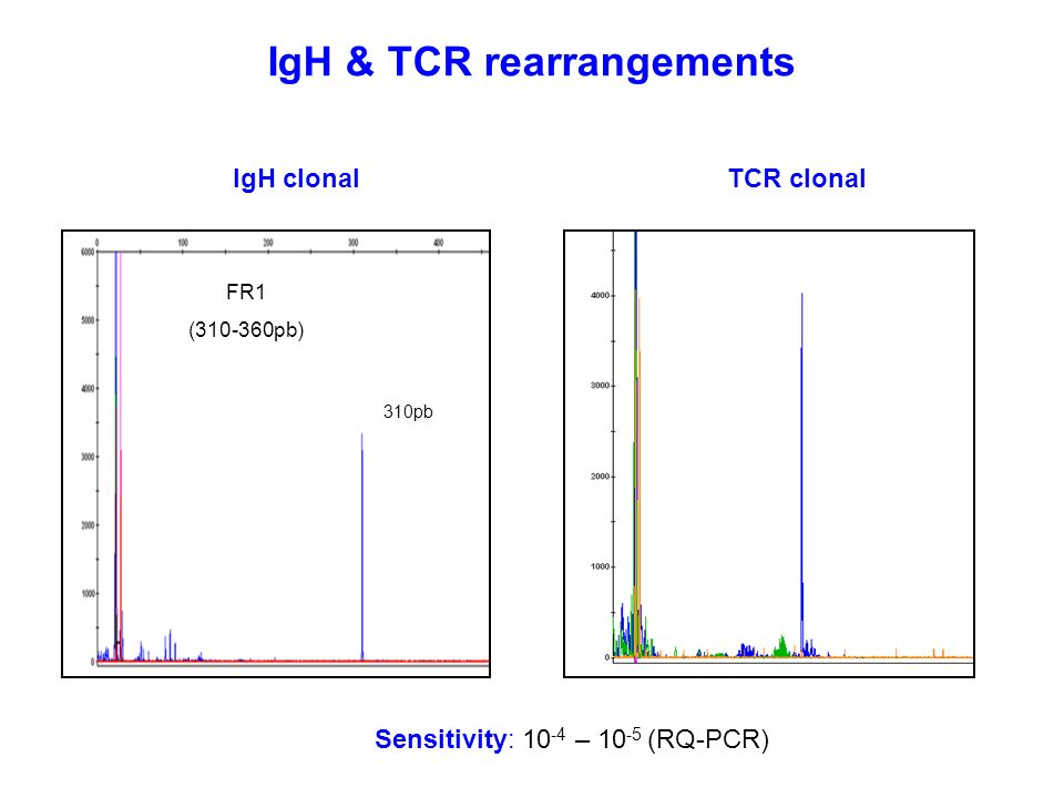 IgH & TCR rearrangements Sensitivity: 10 -4 – 10 -5 (RQ-PCR) TCR clonal FR1 (310-360pb) 310pb IgH clonal