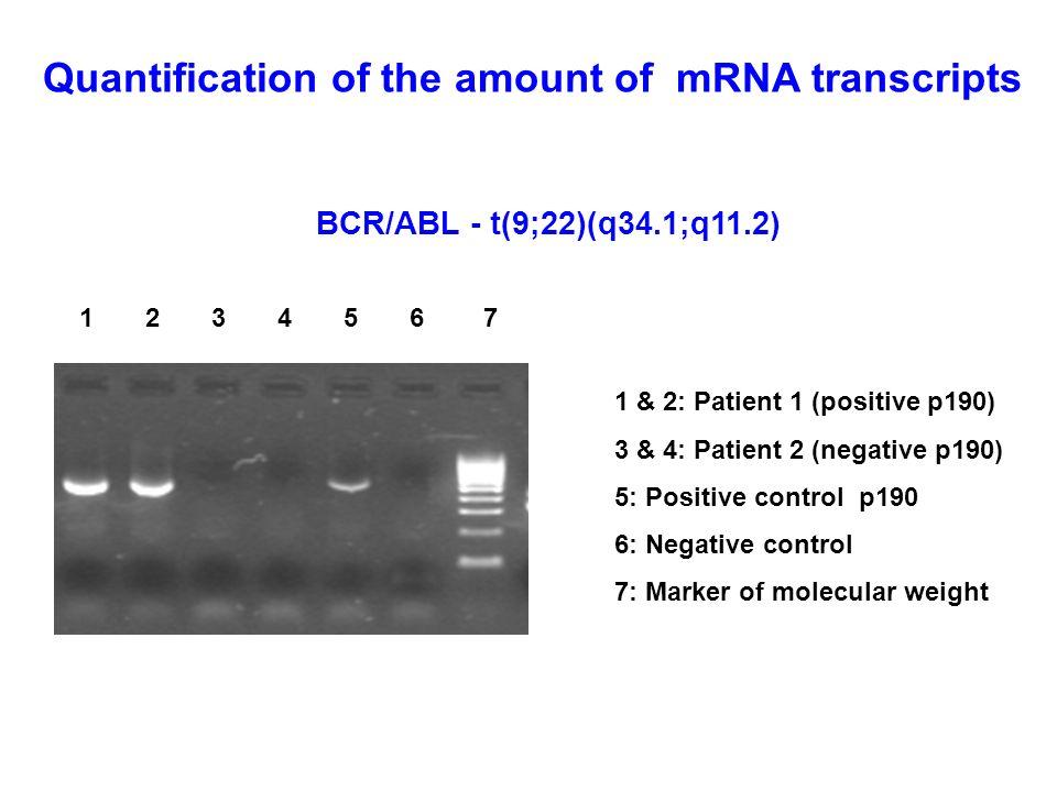 BCR/ABL - t(9;22)(q34.1;q11.2) 1 2 3 4 5 6 7 1 & 2: Patient 1 (positive p190) 3 & 4: Patient 2 (negative p190) 5: Positive control p190 6: Negative co