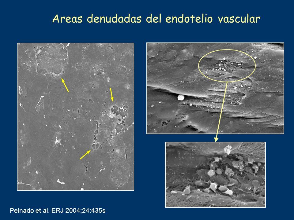 Areas denudadas del endotelio vascular Peinado et al. ERJ 2004;24:435s