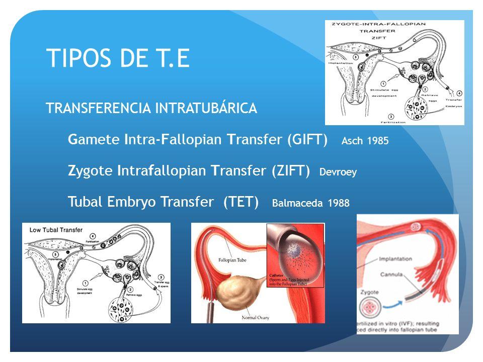 TIPOS DE T.E TRANSFERENCIA INTRATUBÁRICA Gamete Intra-Fallopian Transfer (GIFT) Asch 1985 Zygote Intrafallopian Transfer (ZIFT) Devroey Tubal Embryo T