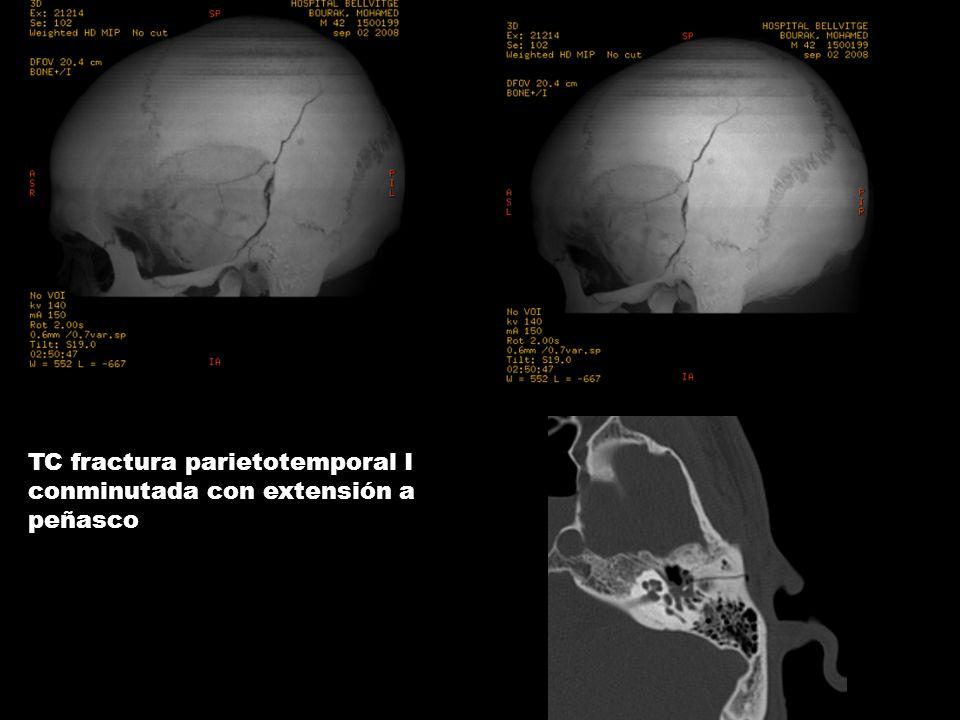 TC fractura parietotemporal I conminutada con extensión a peñasco