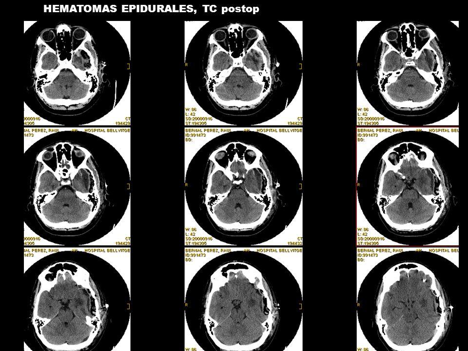 HEMATOMAS EPIDURALES, TC postop