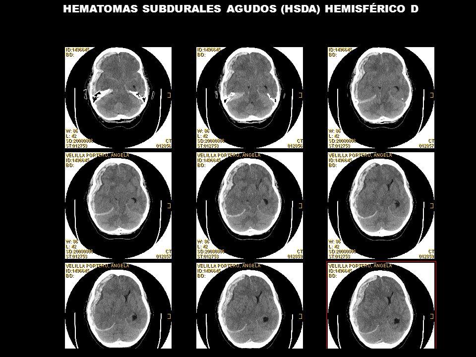 04/08/2008 HEMATOMAS SUBDURALES AGUDOS (HSDA) HEMISFÉRICO D