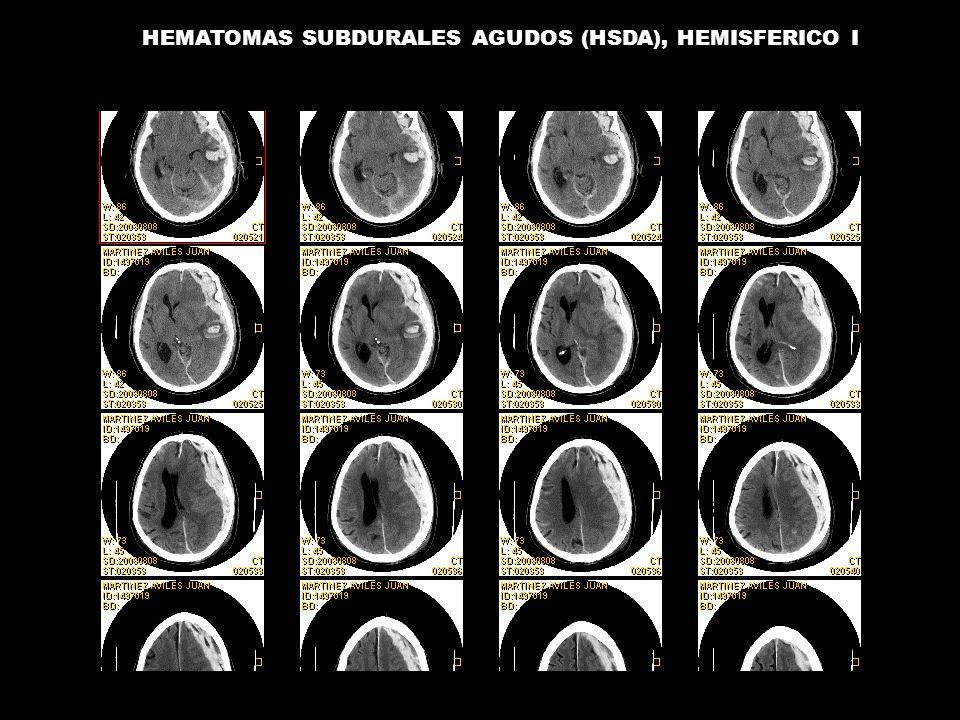 HEMATOMAS SUBDURALES AGUDOS (HSDA), HEMISFERICO I