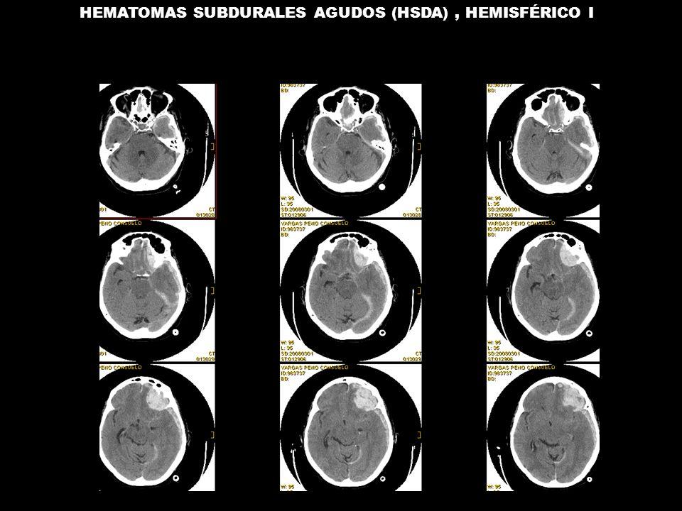 HEMATOMAS SUBDURALES AGUDOS (HSDA), HEMISFÉRICO I