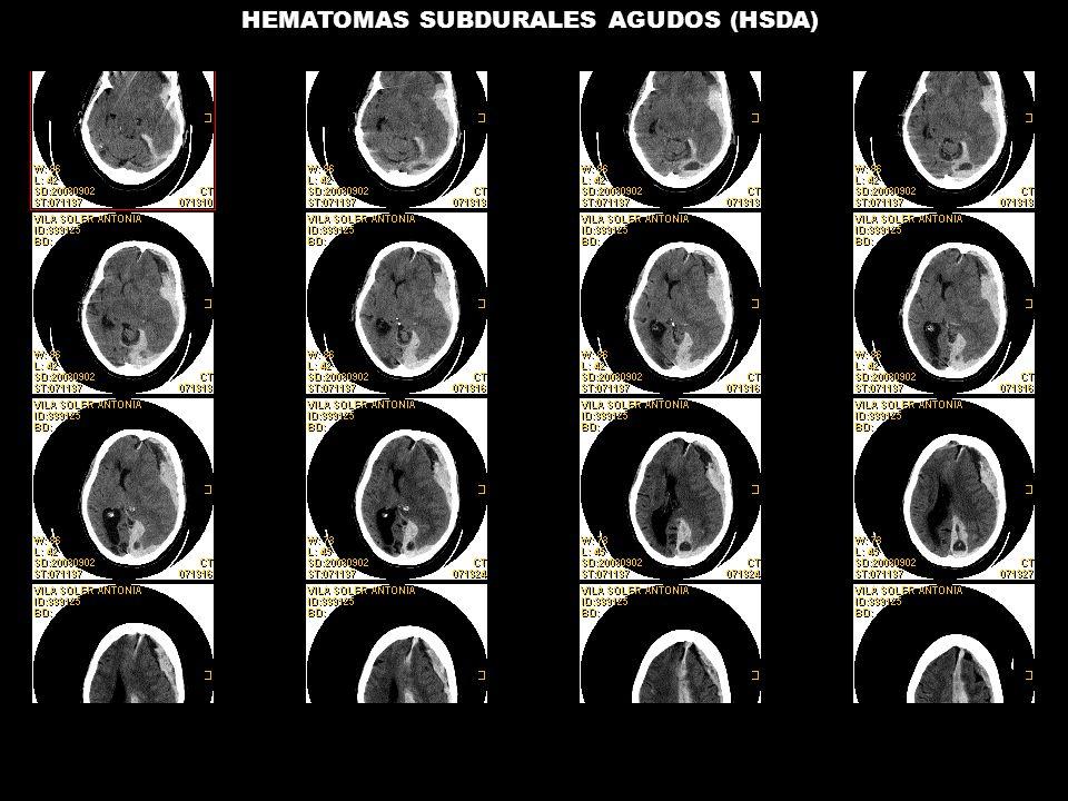 HEMATOMAS SUBDURALES AGUDOS (HSDA)