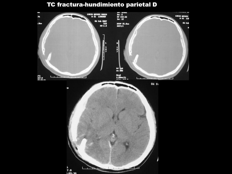 04/08/2008 TC fractura-hundimiento parietal D