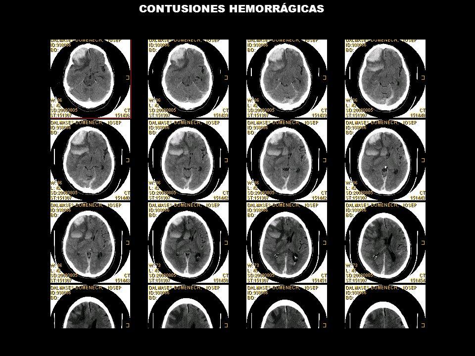 04/08/2008 CONTUSIONES HEMORRÁGICAS
