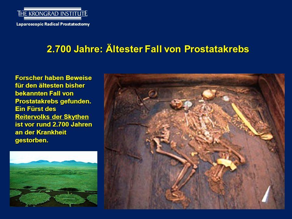 Laparoscopic Radical Prostatectomy 2.700 Jahre: Ältester Fall von Prostatakrebs Forscher haben Beweise für den ältesten bisher bekannten Fall von Prostatakrebs gefunden.