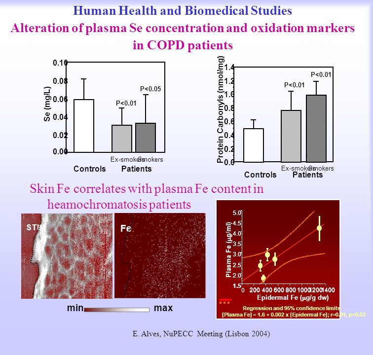 Human Health and Biomedical Studies Alteration of plasma Se concentration and oxidation markers in COPD patients Skin Fe correlates with plasma Fe content in heamochromatosis patients minmax sc ep Fe STIM Protein Carbonyls (nmol/mg) ControlsPatients SmokersEx-smokers P< P<0.01 P<0.05 Se (mg/L) ControlsPatients SmokersEx-smokers E.