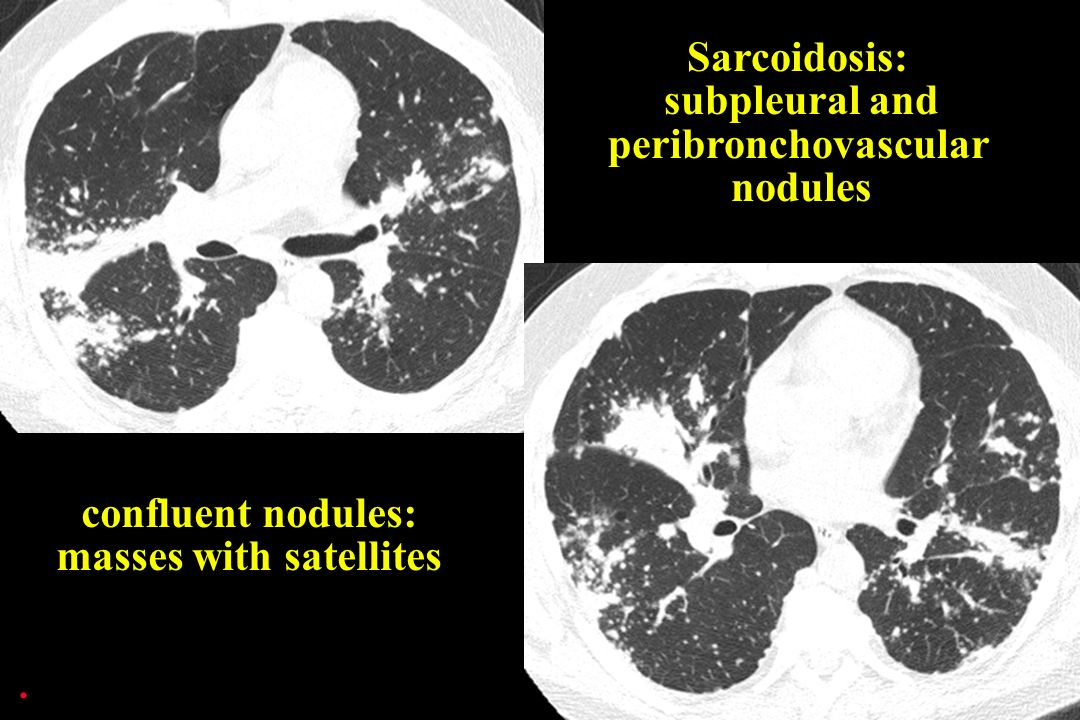. Sarcoidosis: subpleural and peribronchovascular nodules confluent nodules: masses with satellites