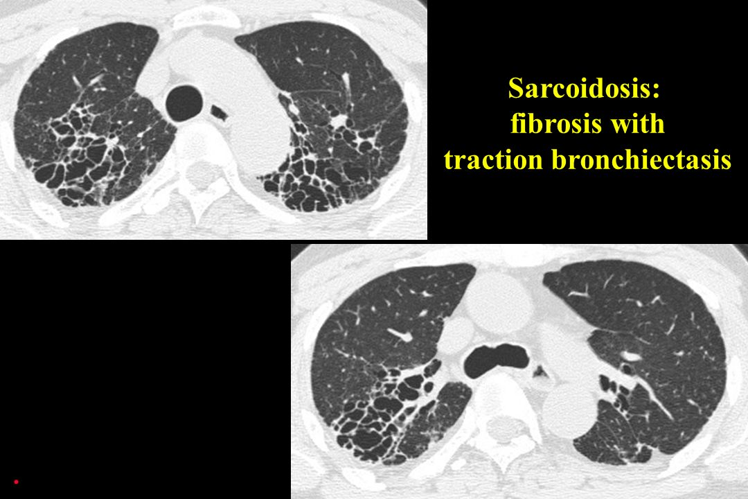Sarcoidosis: fibrosis with traction bronchiectasis.