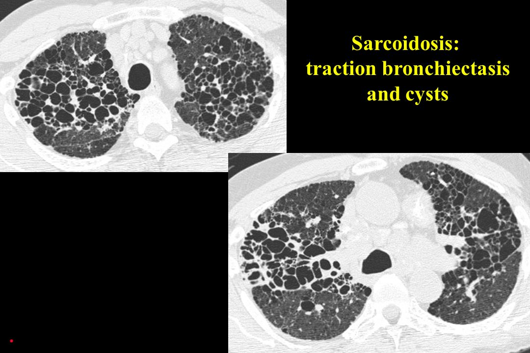Sarcoidosis: traction bronchiectasis and cysts.