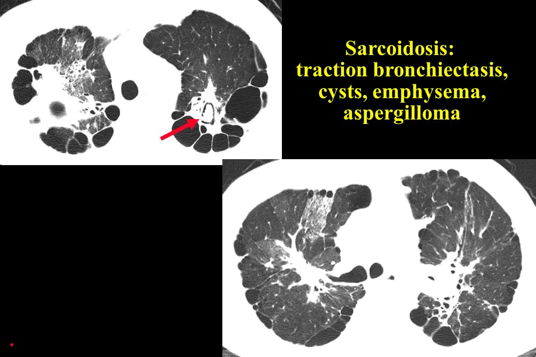 . Sarcoidosis: traction bronchiectasis, cysts, emphysema, aspergilloma