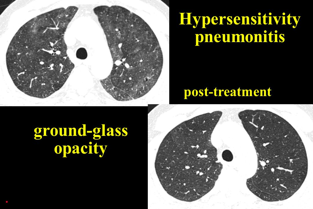 post-treatment Hypersensitivity pneumonitis ground-glass opacity.
