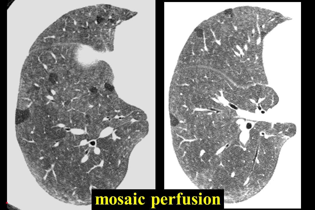 mosaic perfusion.