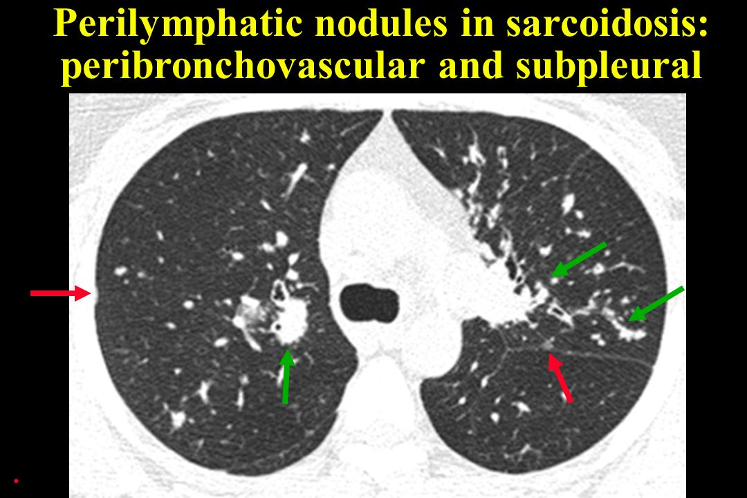 . Perilymphatic nodules in sarcoidosis: peribronchovascular and subpleural