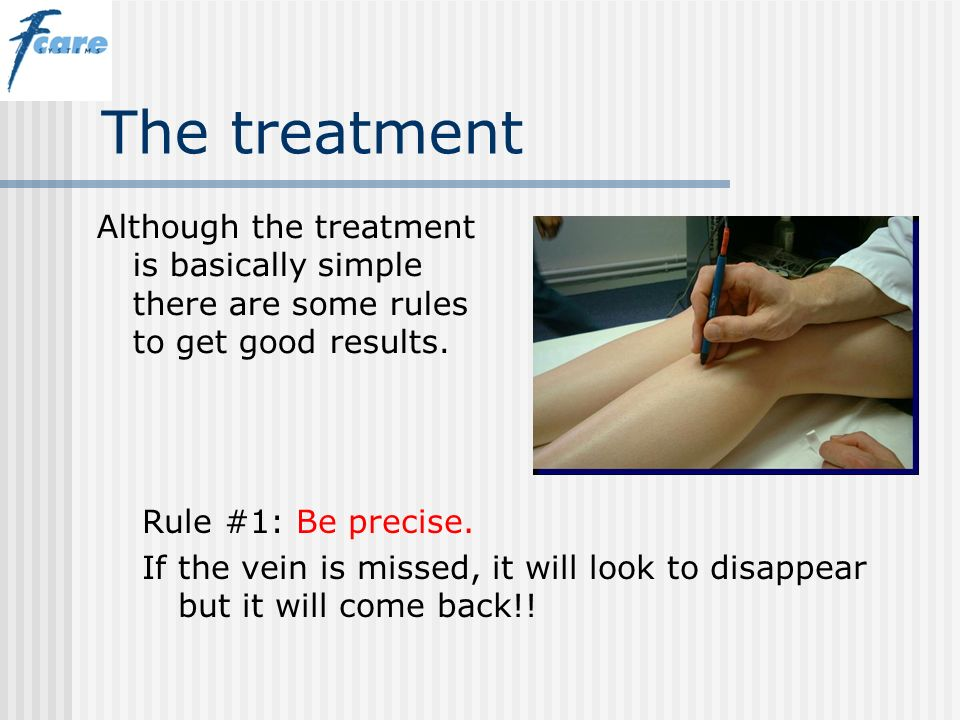 The treatment Although the treatment is basically simple there are some rules to get good results. Rule #1: Be precise. If the vein is missed, it will