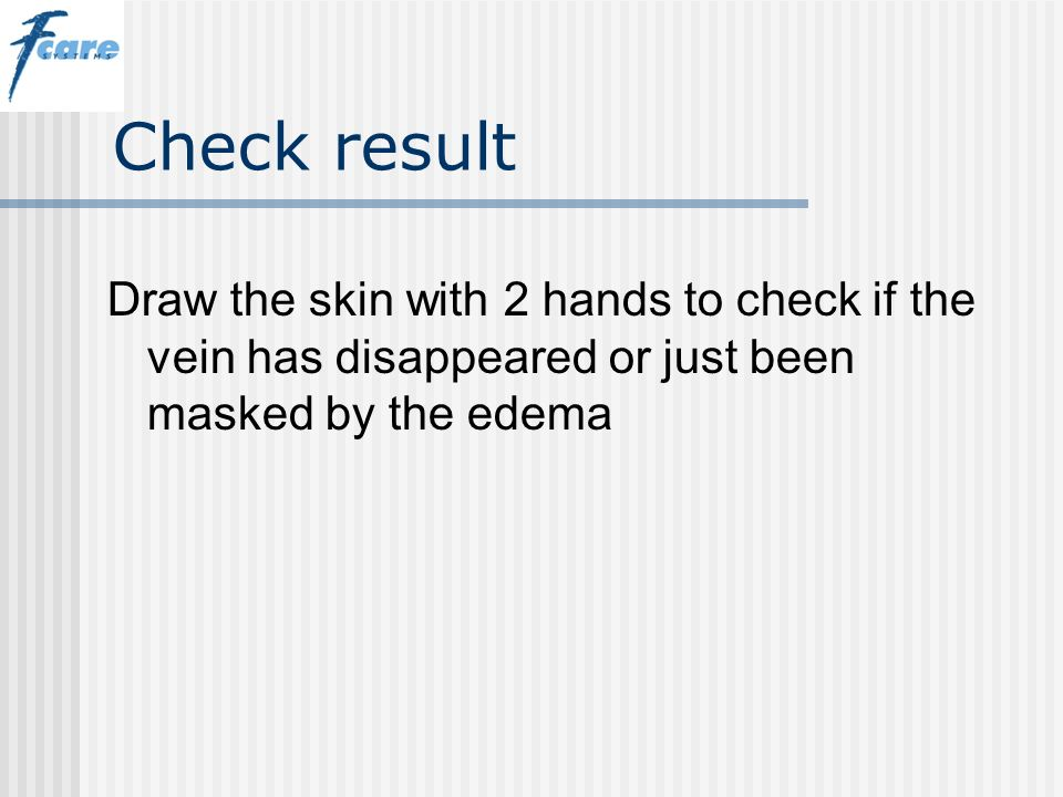 Check result Draw the skin with 2 hands to check if the vein has disappeared or just been masked by the edema