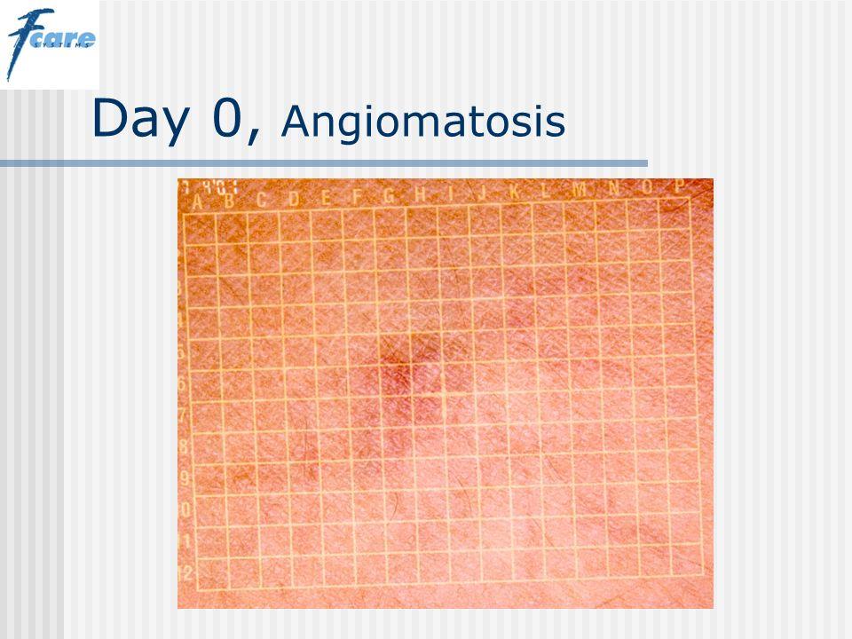 Day 0, Angiomatosis