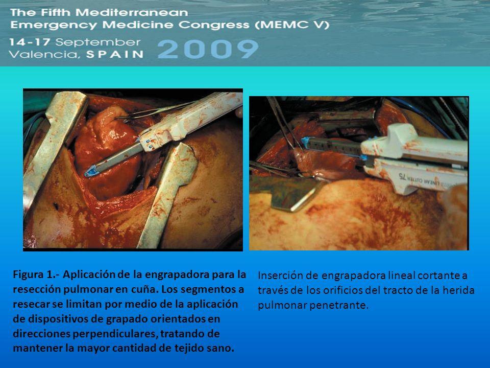 Figura 1.- Aplicación de la engrapadora para la resección pulmonar en cuña. Los segmentos a resecar se limitan por medio de la aplicación de dispositi