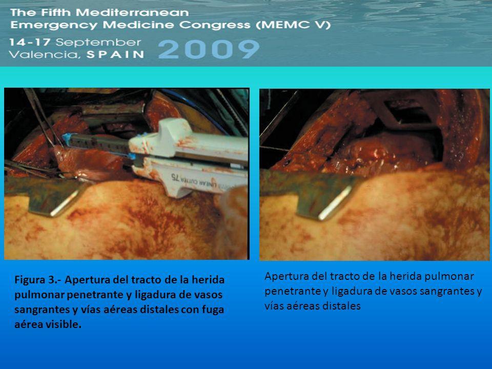Figura 3.- Apertura del tracto de la herida pulmonar penetrante y ligadura de vasos sangrantes y vías aéreas distales con fuga aérea visible. Apertura
