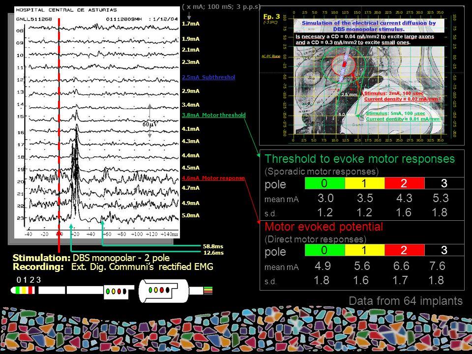 0 1 2 3 Threshold to evoke motor responses (Sporadic motor responses) pole mean mA 3.0 3.5 4.3 5.3 s.d.