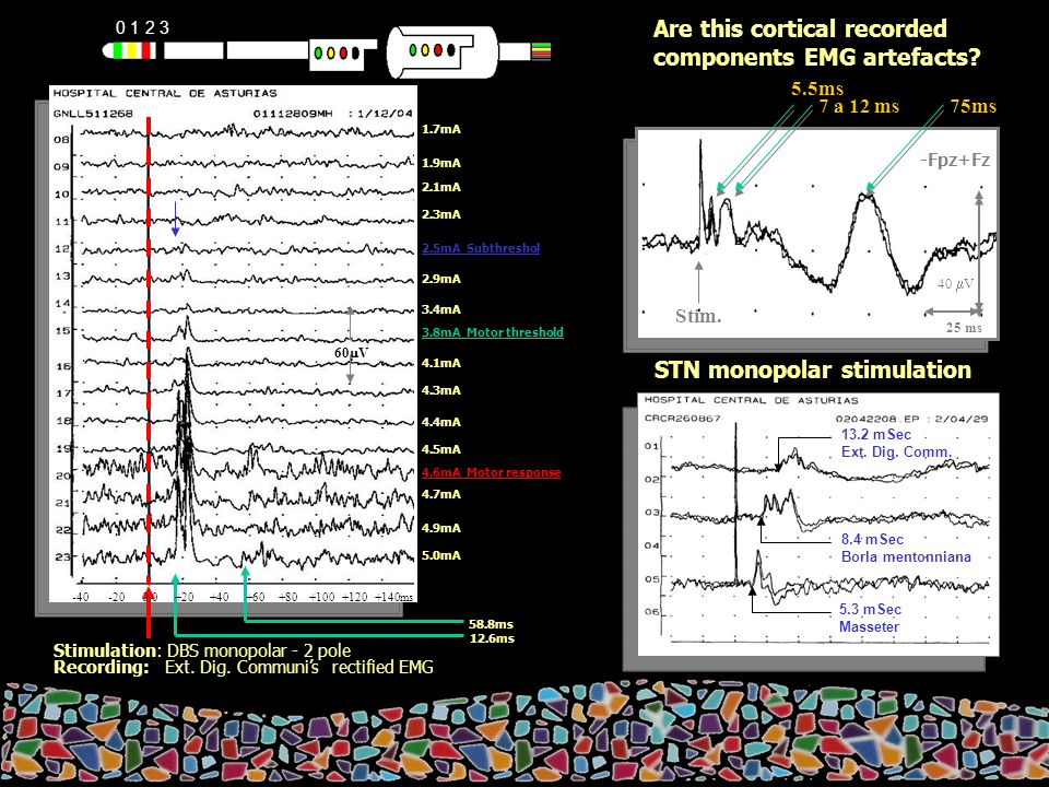 STN monopolar stimulation Are this cortical recorded components EMG artefacts.