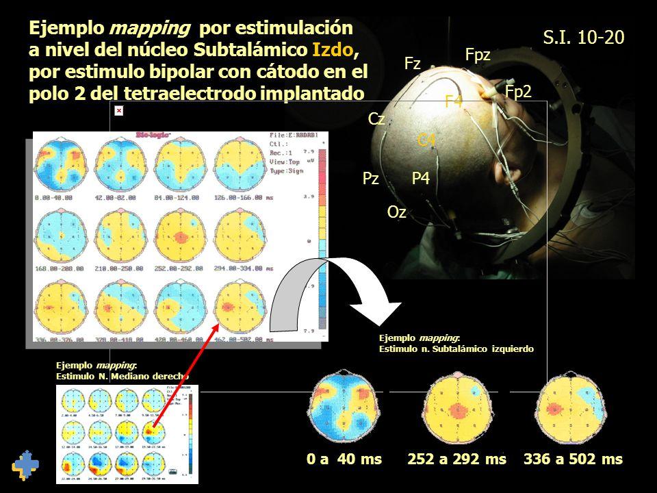 S.I. 10-20 Fpz Fz Cz Pz Oz P4 C4 F4 Fp2 Ejemplo mapping por estimulación a nivel del núcleo Subtalámico Izdo, por estimulo bipolar con cátodo en el po