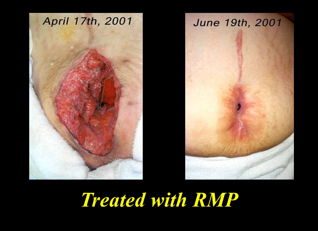 Treated with RMP