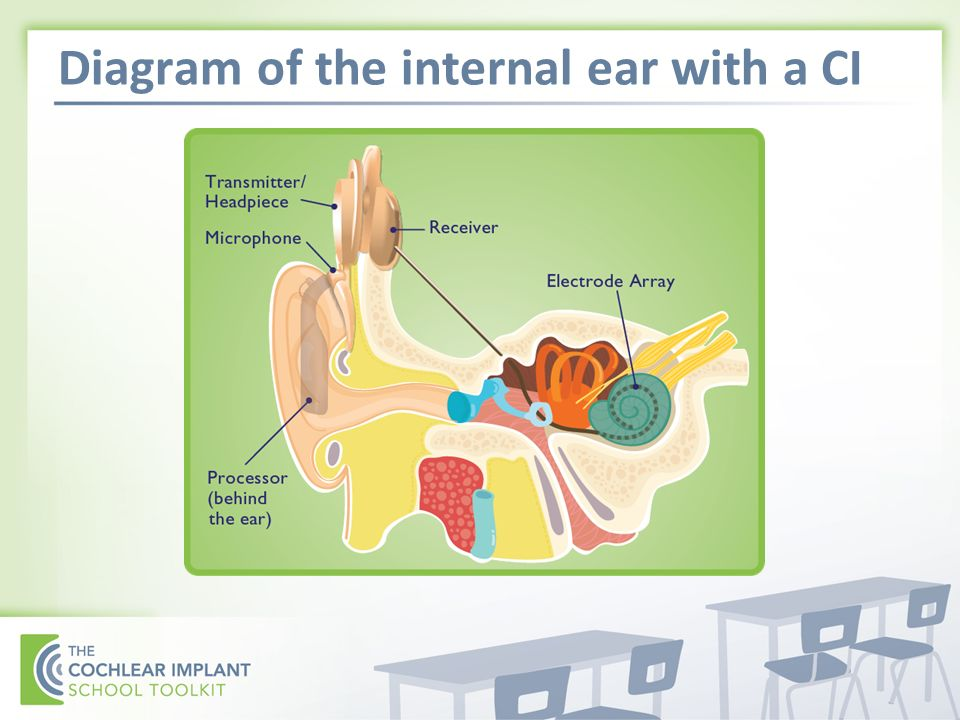 Diagram of the internal ear with a CI