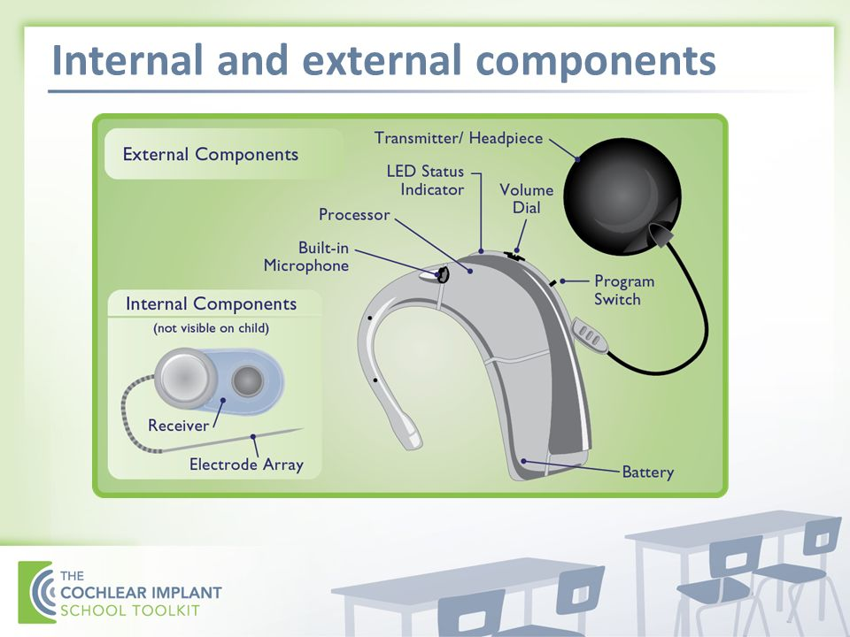 Internal and external components