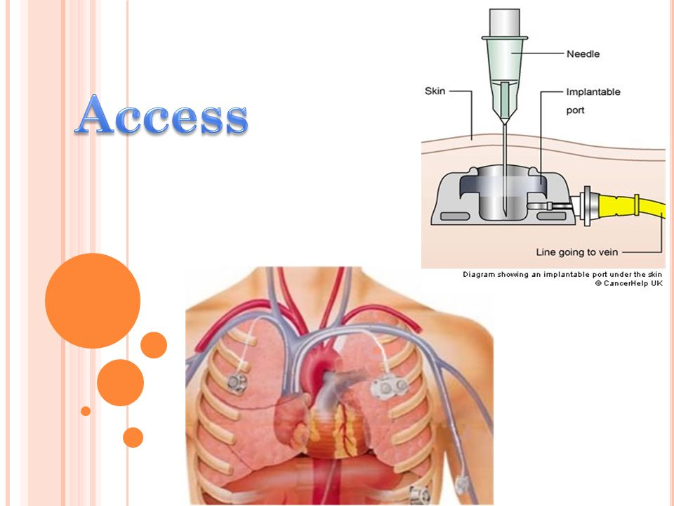 1.Restlessness or increased irritability. 2. Increased breathing (respiratory) rate.