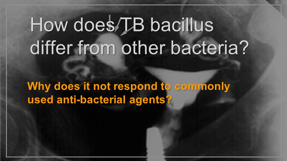 How does TB bacillus differ from other bacteria? Why does it not respond to commonly used anti-bacterial agents?
