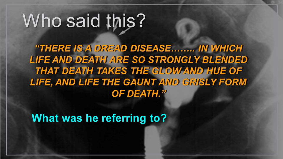 Who said this? What was he referring to? THERE IS A DREAD DISEASE…….. IN WHICH LIFE AND DEATH ARE SO STRONGLY BLENDED THAT DEATH TAKES THE GLOW AND HU