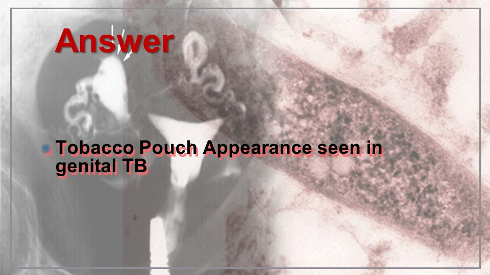 AnswerAnswer Tobacco Pouch Appearance seen in genital TB