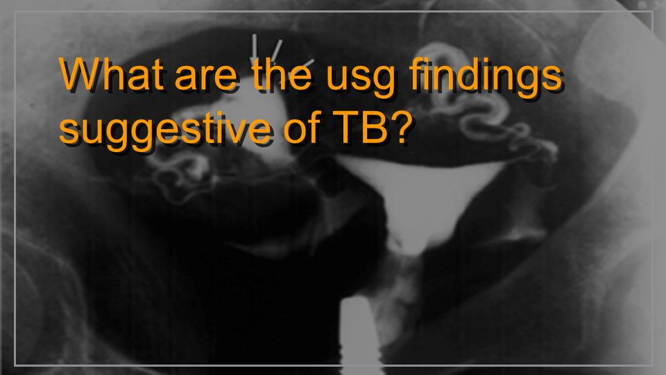 What are the usg findings suggestive of TB?