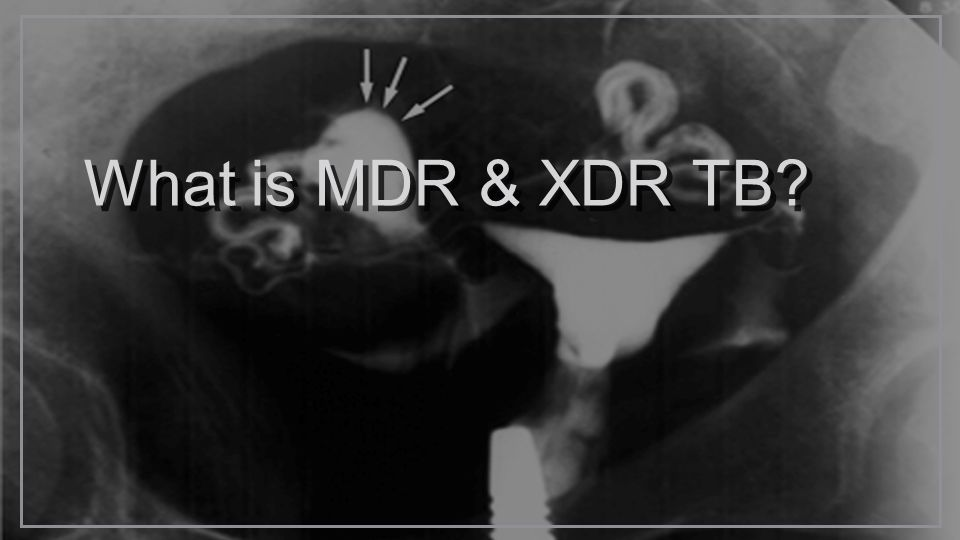 What is MDR & XDR TB?