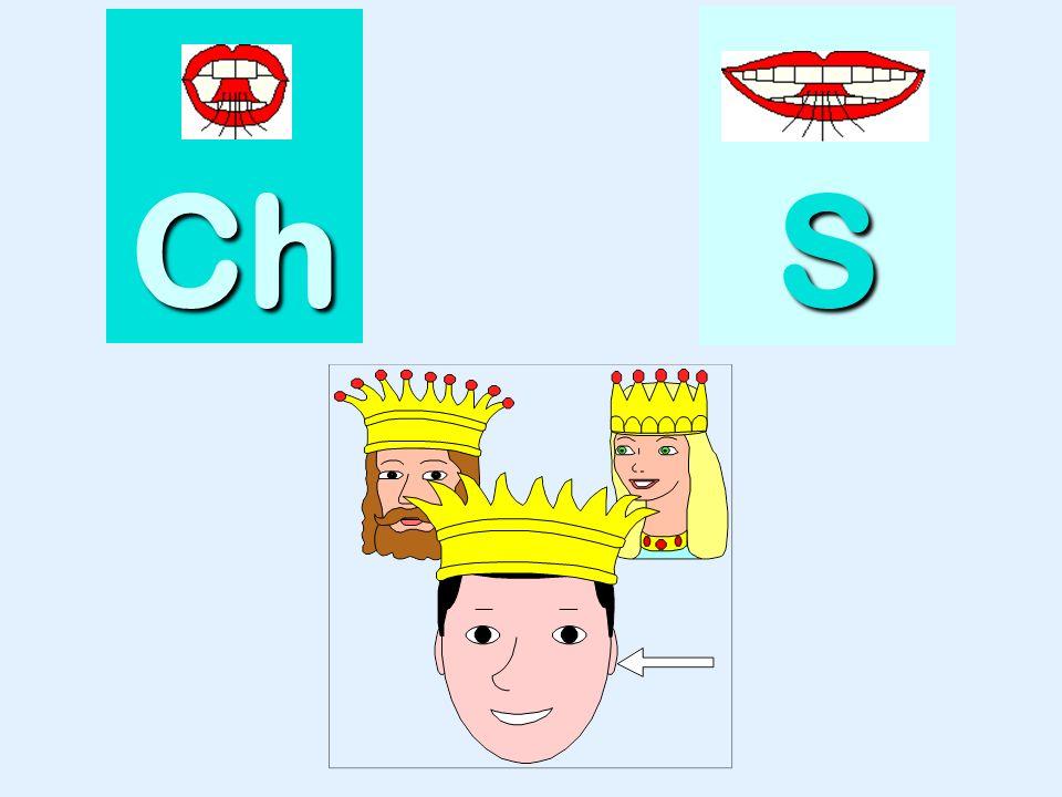 bouche Ch SSSS