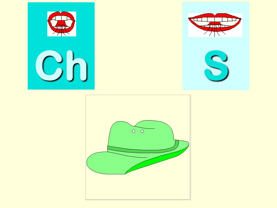 chanteur Ch SSSS