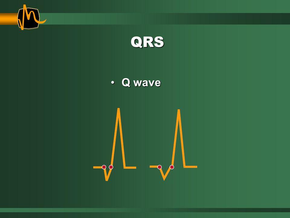 QRS Q waveQ wave