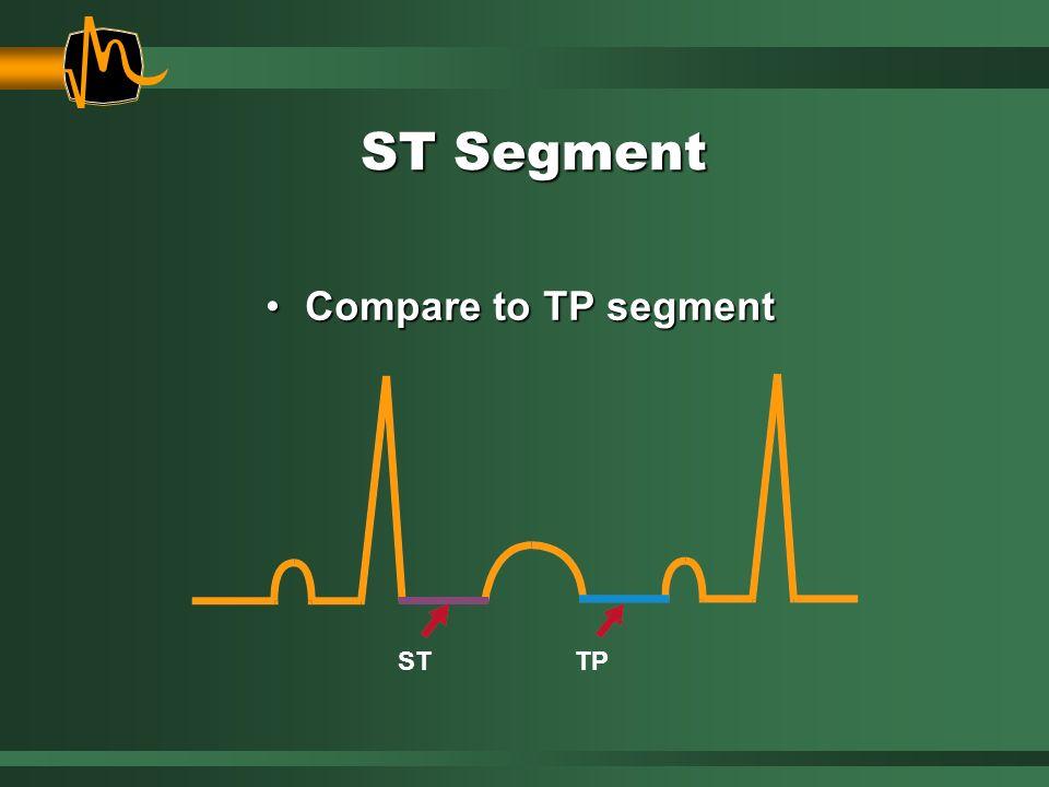 ST Segment Compare to TP segmentCompare to TP segment STTP