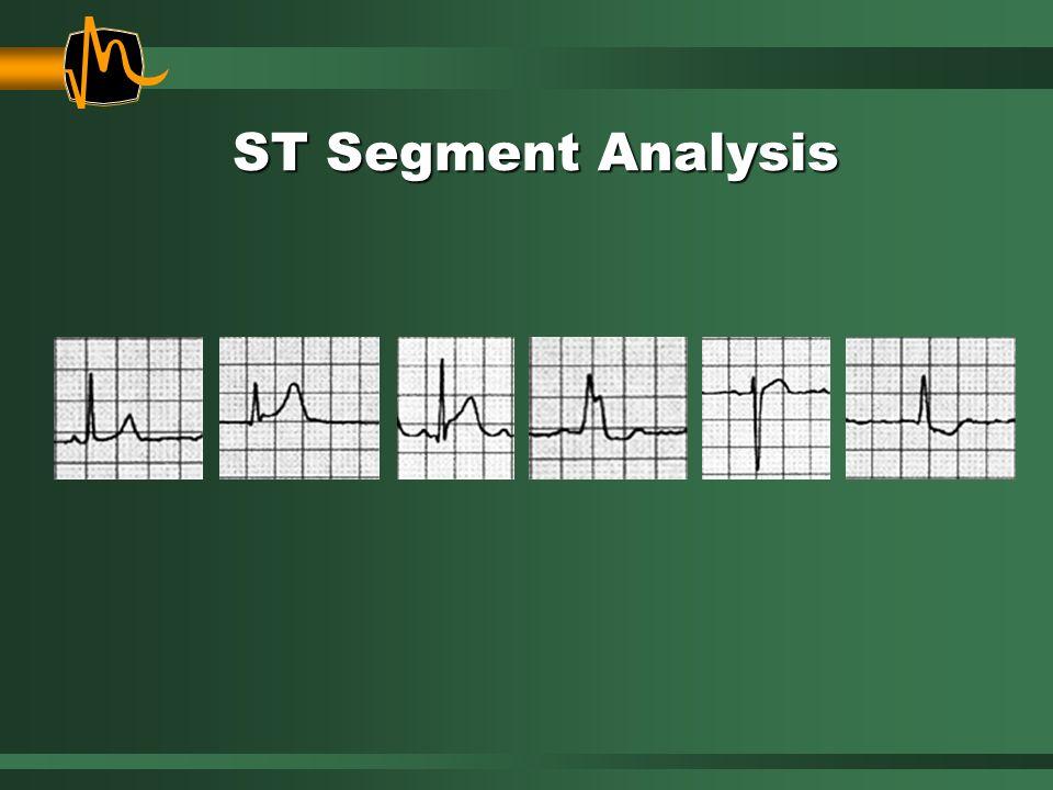 ST Segment Analysis