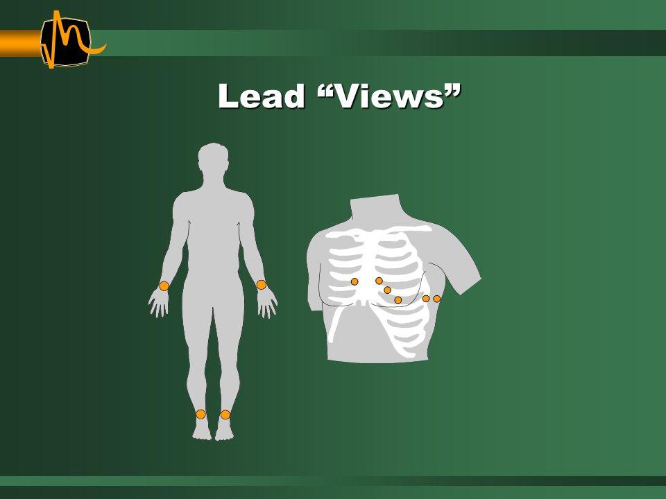 Lead Views