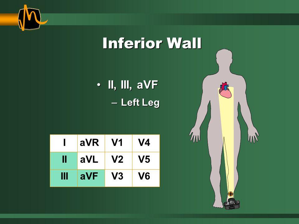 Inferior Wall II, III, aVFII, III, aVF –Left Leg I II III aVR aVL aVF V1 V2 V3 V4 V5 V6