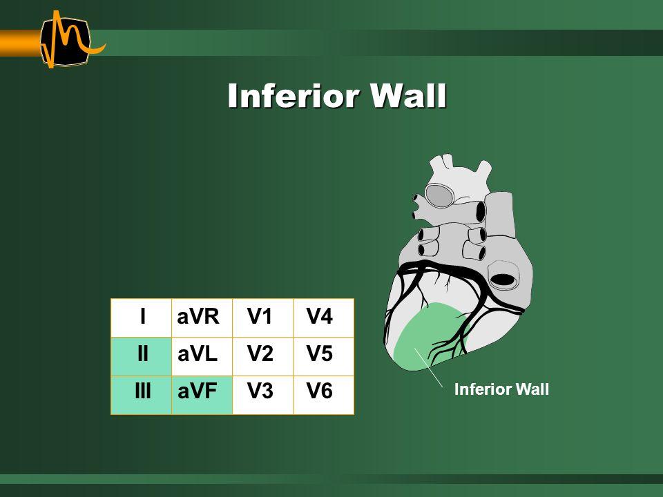 Inferior Wall I II III aVR aVL aVF V1 V2 V3 V4 V5 V6
