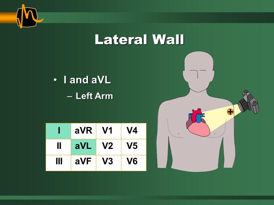 Lateral Wall I and aVLI and aVL –Left Arm I II III aVR aVL aVF V1 V2 V3 V4 V5 V6