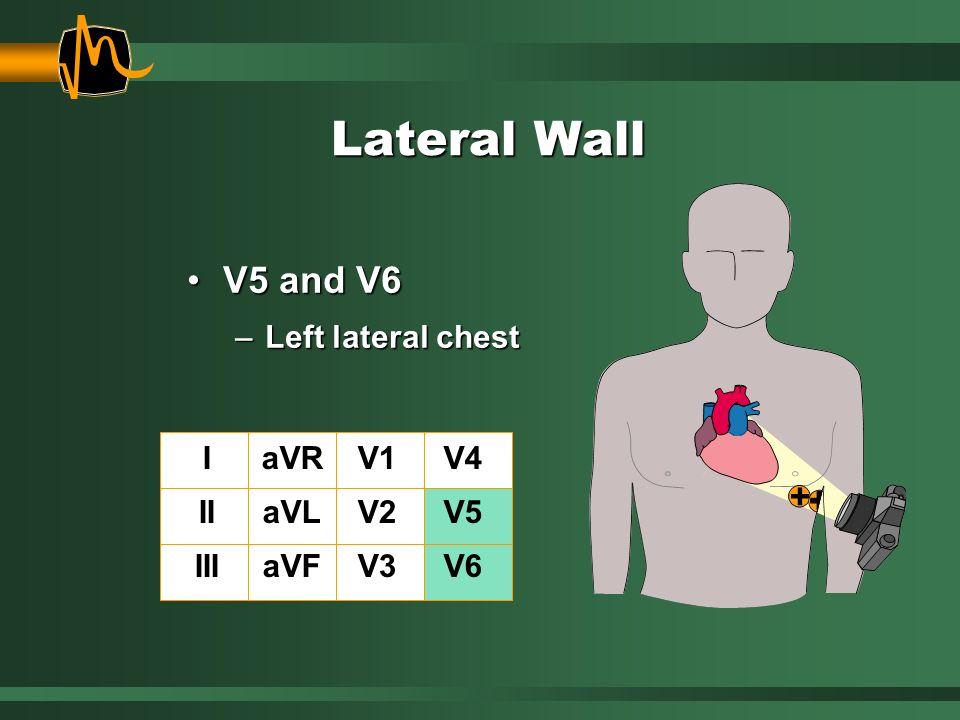 Lateral Wall V5 and V6V5 and V6 –Left lateral chest I II III aVR aVL aVF V1 V2 V3 V4 V5 V6