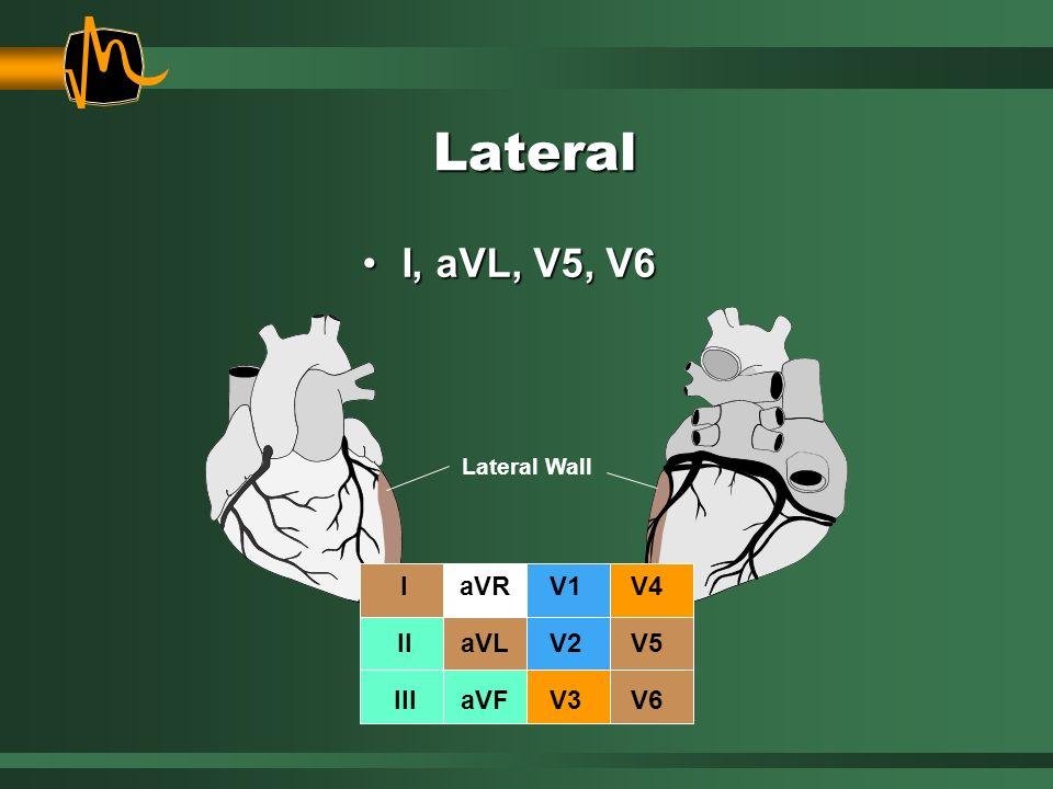 Lateral Lateral Wall I, aVL, V5, V6I, aVL, V5, V6 I II III aVR aVL aVF V1 V2 V3 V4 V5 V6
