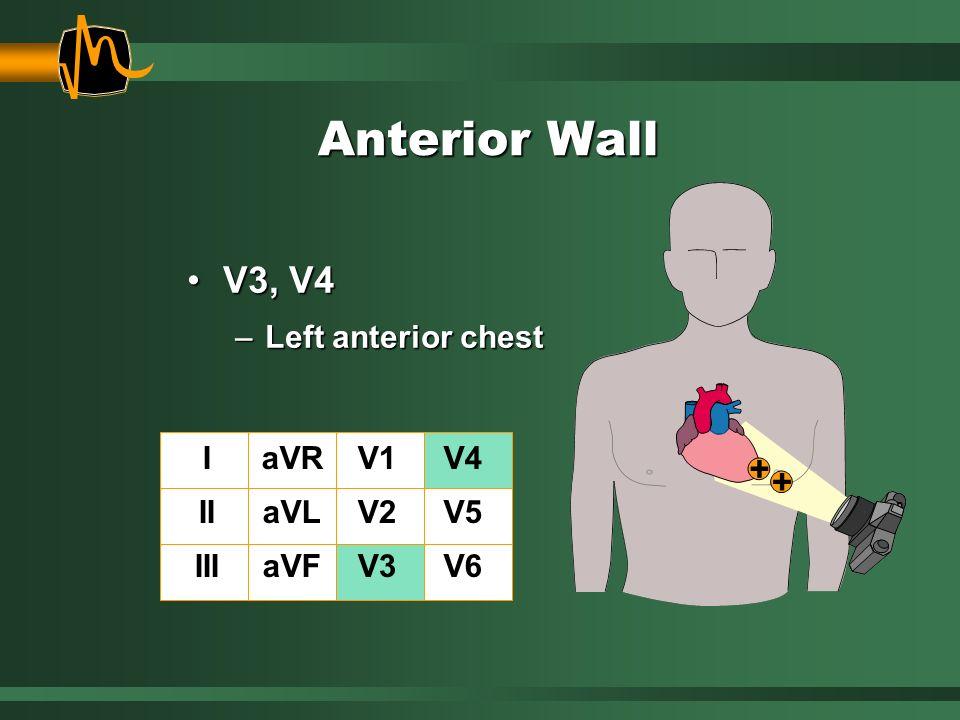 Anterior Wall V3, V4V3, V4 –Left anterior chest I II III aVR aVL aVF V1 V2 V3 V4 V5 V6